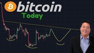 Reversal Pattern Forming? | Robert Kiyosaki Bullish On Bitcoin, But NOT The Dollar!!